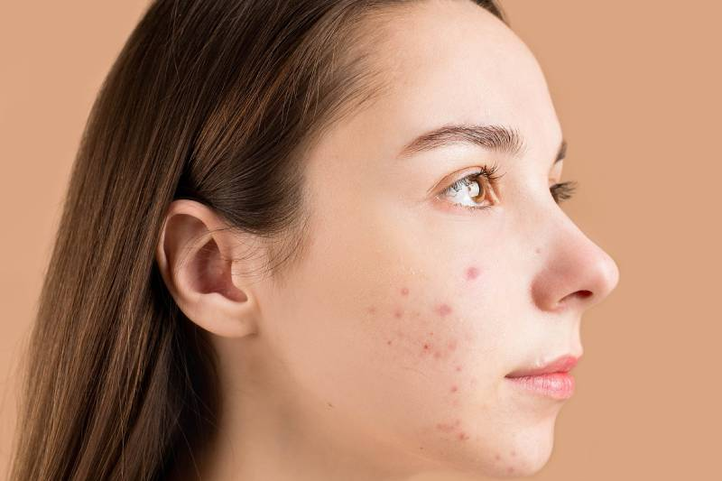 acne bumps on face
