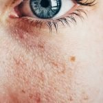What Causes Uneven Skin Tone and How to Treat It