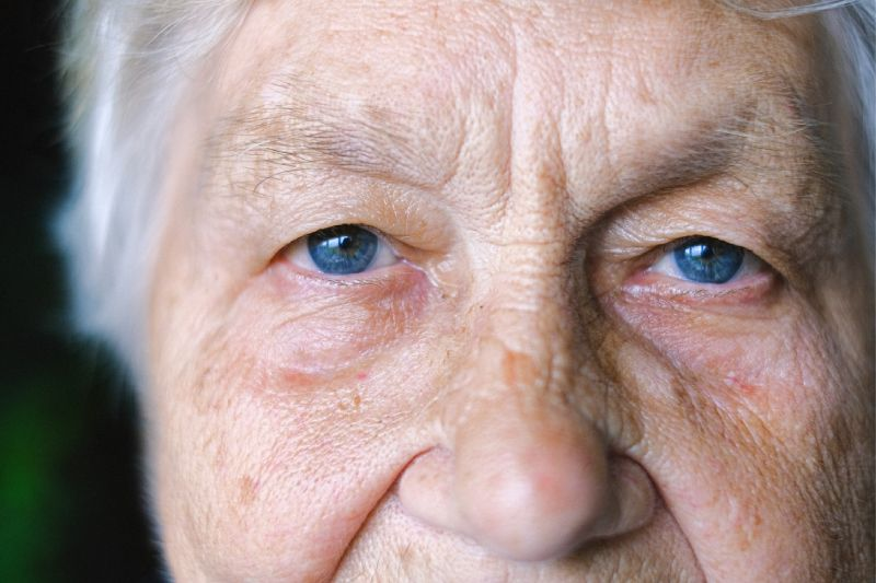 aging skin with sunspots